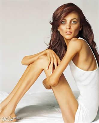 Trabajo sobre la anorexia.